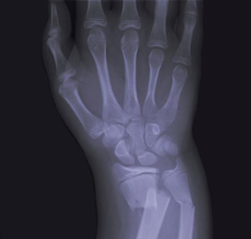 xray_broken_wrist